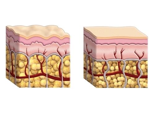 При проведении курса процедур LPG-массажа метаболически неактивная жировая ткань пробуждается, обменные процессы в ней нормализуются и запускается сжигание жира