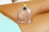 Баночный массаж от целлюлита: эффект после первого сеанса